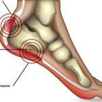Heel pain? Heal it…