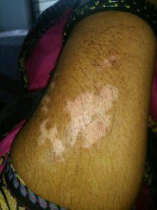 Vitiligo A Skin Problem Skin Care Health Vision India
