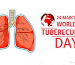 Research for new TB medicine is need of the hour