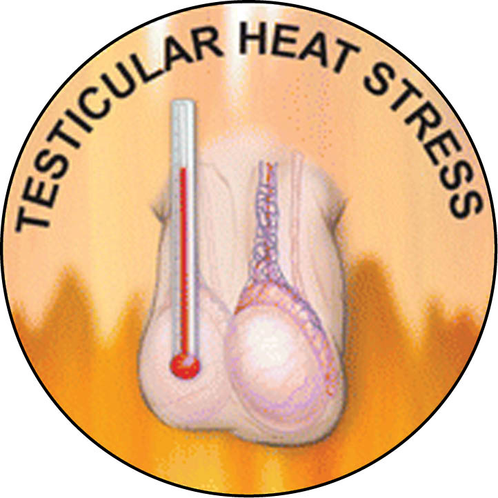 Testicular heat stress