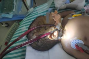 a baby with Meconium aspiration syndrome (MAS) and neonatal sepsis