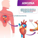 Angina :Treatments and prevention