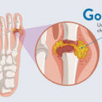 Manage arthritis with lifestyle changes & strategies