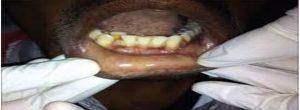 viral-hepatitis-in-dentistry-