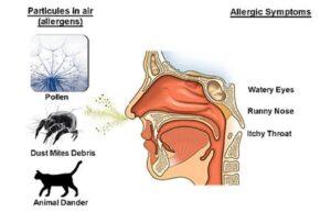 allergy-symptom.