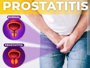 Prostatitis mag hátfájás a prosztatában